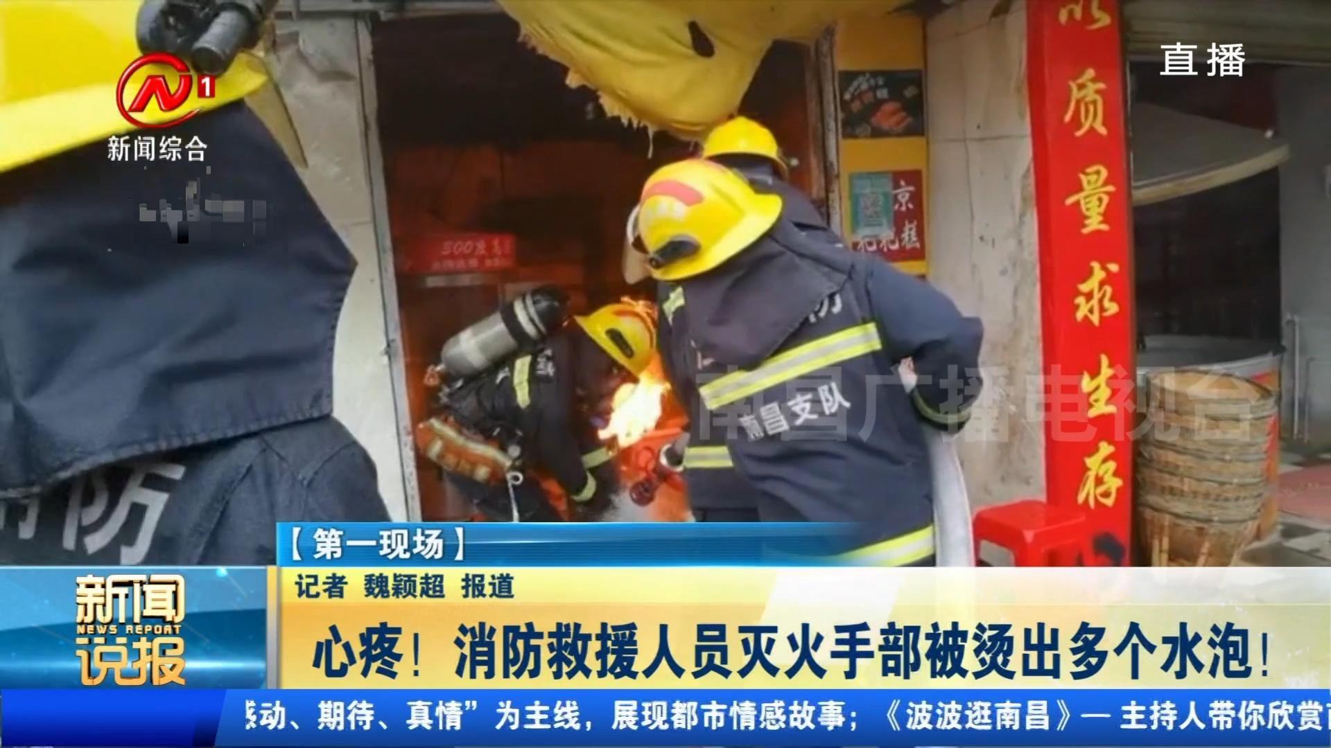 心疼! 消防救援人员灭火手部被烫出多个水泡!